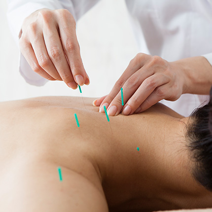 Woman applying accupuncture needles on neck and upper back