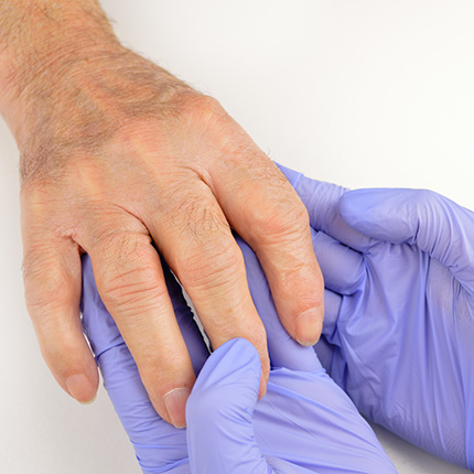 Doctor wearing gloves examining arthritis patient's hand